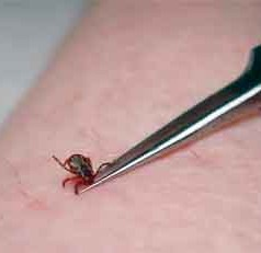Limiting tick exposure is the first step to preventing tickborne diseases